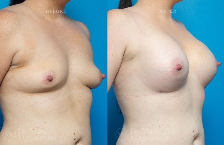 Breast_Asymmetry-breast_implants_005