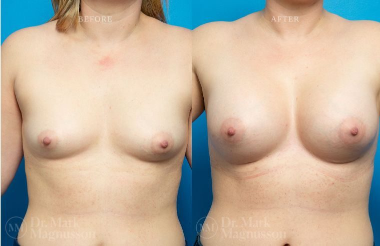 Breast_Asymmetry-breast_implants_006