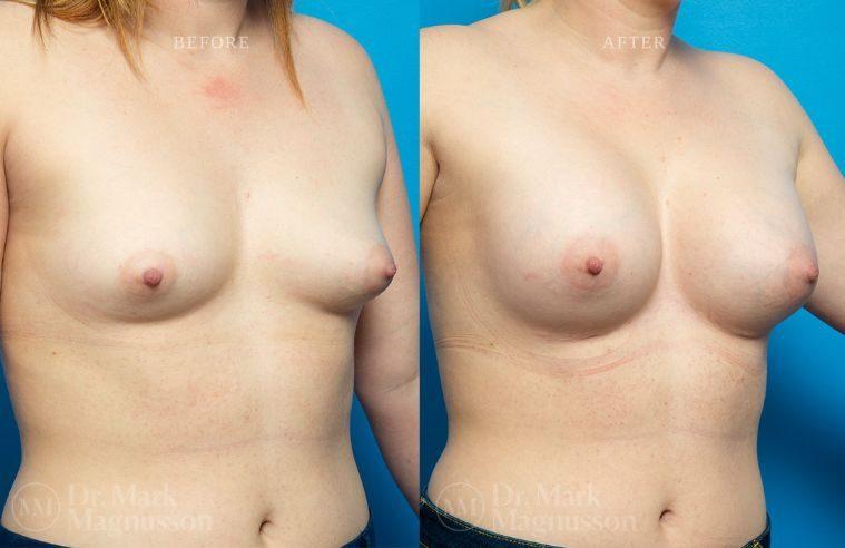 Breast_Asymmetry-breast_implants_007