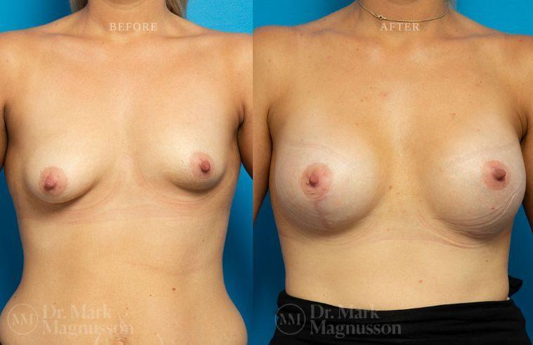 Breast_Asymmetry-breast_implants_008