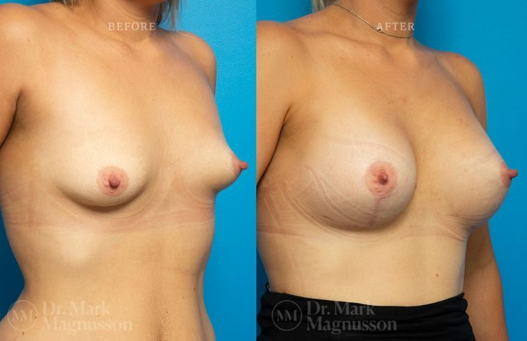 Breast_Asymmetry-breast_implants_009