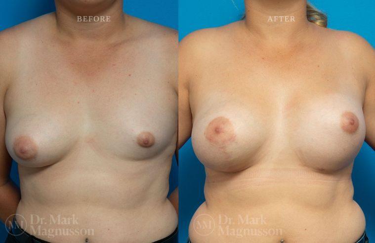 Breast_Asymmetry-breast_implants_mastopexy_005