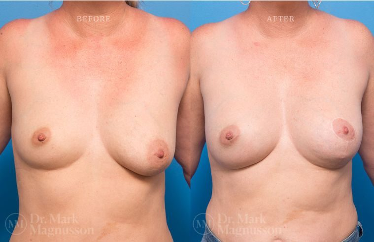 Breast_Asymmetry-breast_implants_mastopexy_007