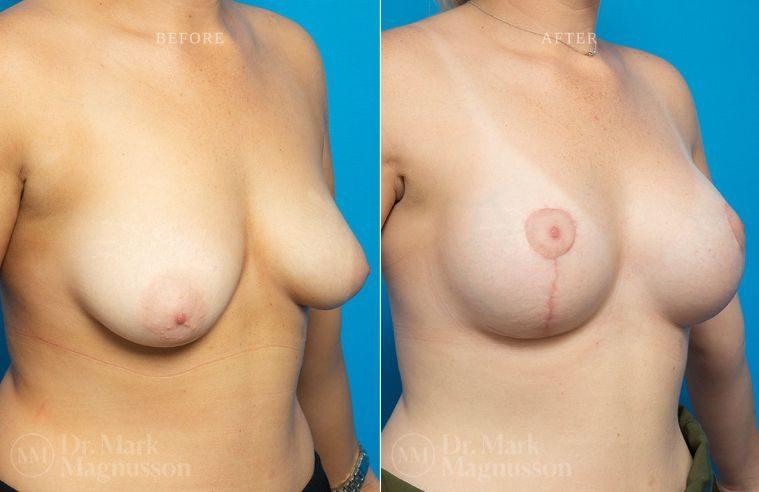 Breast_Asymmetry-breast_implants_mastopexy_012