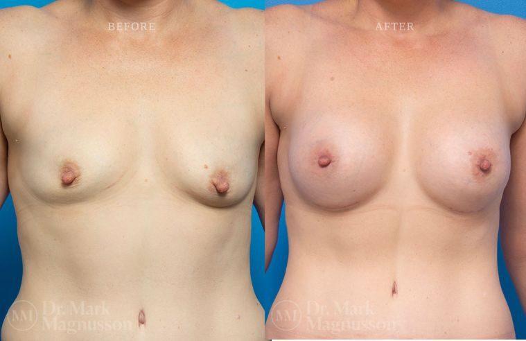 Breast_Asymmetry-breast_implants_mastopexy_013