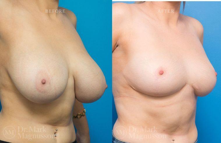 Breast_Asymmetry-breast_reduction_001