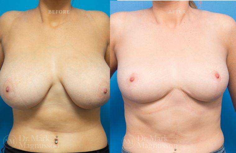 Breast_Asymmetry-breast_reduction_002