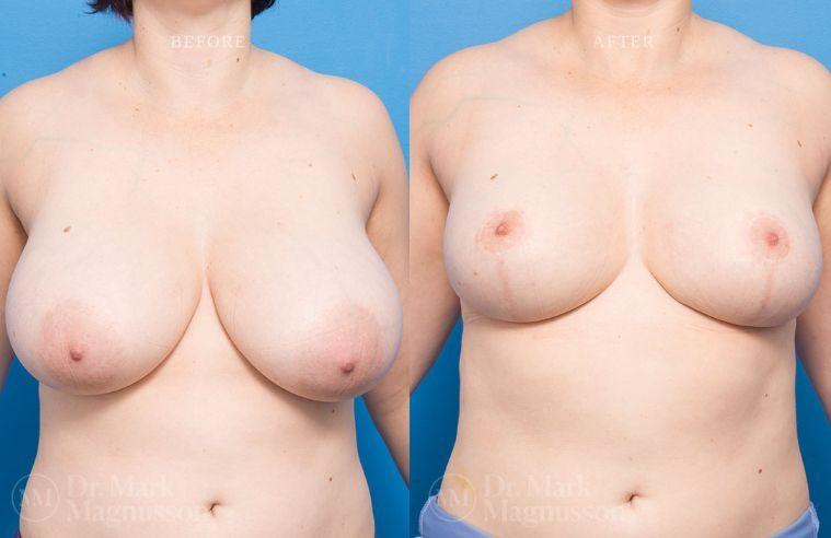 Breast_Asymmetry-breast_reduction_003