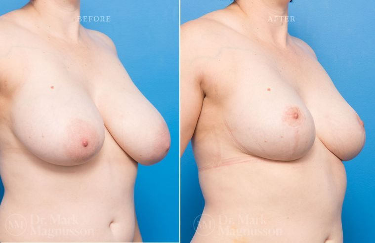 Breast_Asymmetry-breast_reduction_004