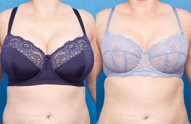 Breast_Asymmetry-breast_reduction_005
