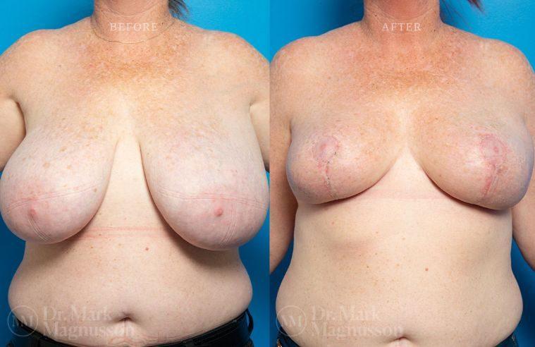 Breast_Asymmetry-breast_reduction_007