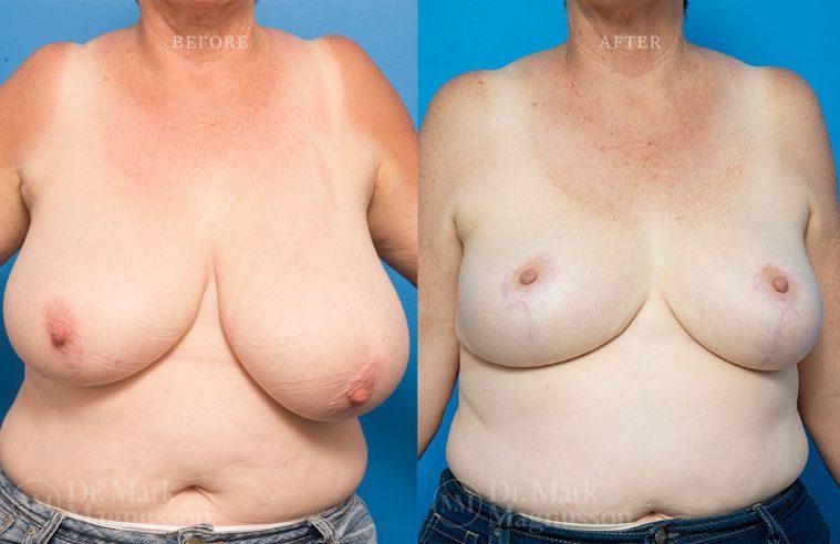 Breast_Asymmetry-breast_reduction_009