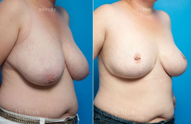 Breast_Asymmetry-breast_reduction_012