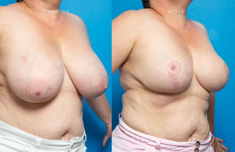 Breast_Asymmetry-breast_reduction_013